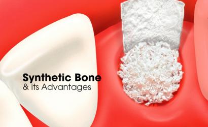 Bone-Cement